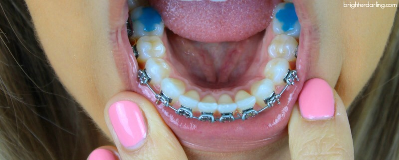 6 Month Braces Update Adult Braces Lower Teeth