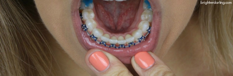 Adult Braces Update Month 7 Lower