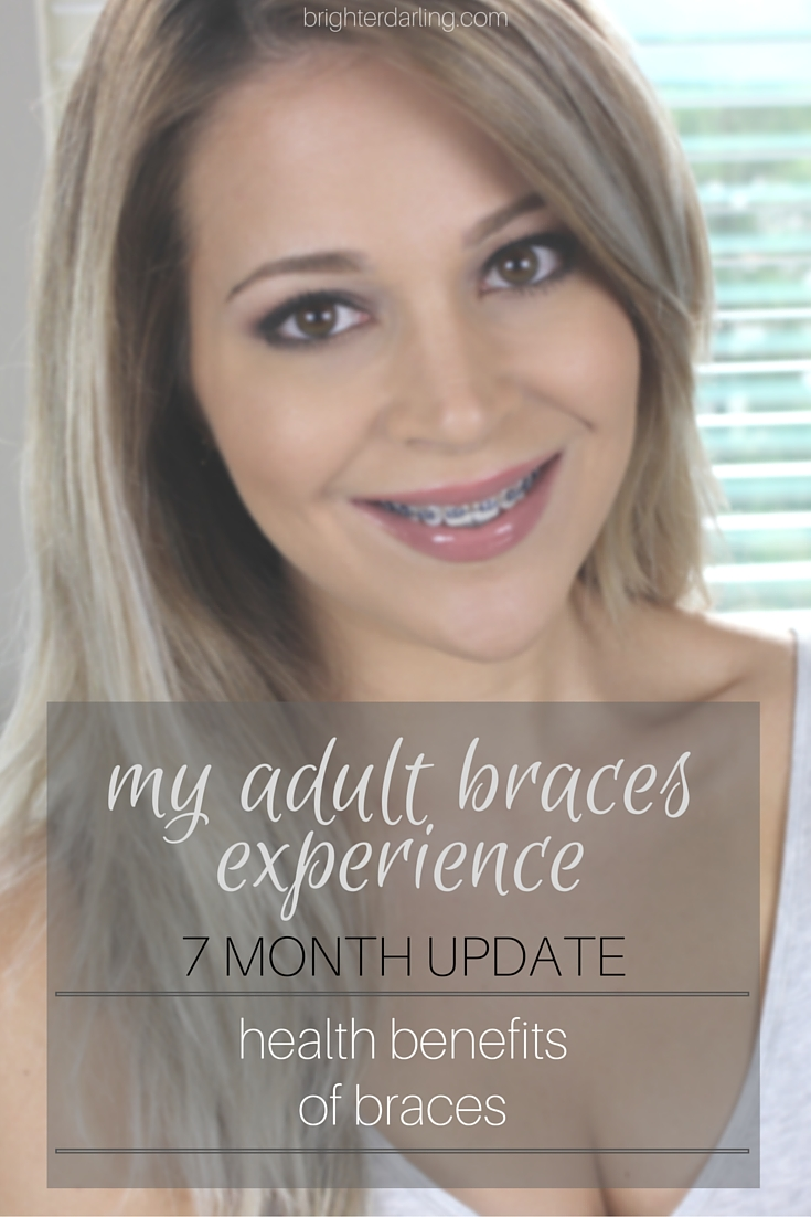 Health Benefits of Adult Braces | Women with Braces | Braces Update Month 7 #BrighterDarling