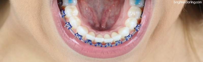Adult Braces 9 Month Update Lower Teeth