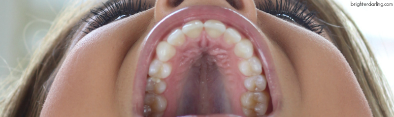 Month 14 Adult Braces Update Upper Teeth