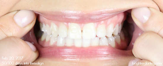 Adults with Invisalign Cross Bite   Month 16 Adult Braces Update