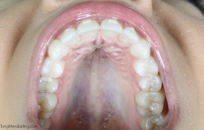 Adult Braces Update 10 Top Teeth   Adults with Invisalign Cross Bite   Month 16 Adult Braces Update