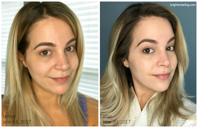 before after using Olay Regenerist Micro Sculpting Cream