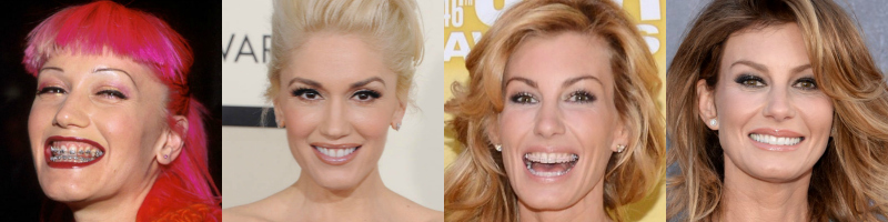 Braces-Before-After-Gwen-Stefani-Faith-Hill