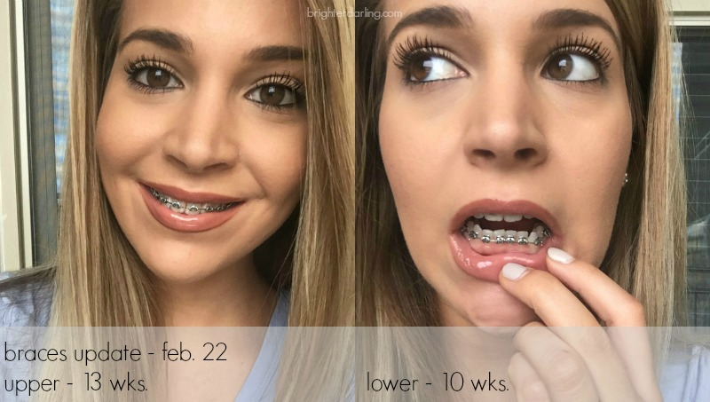 adult braces update at 30, month three update, top and bottom braces on adult woman