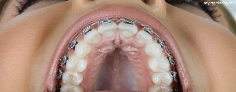 6 Month Braces Update Adult Braces Upper Teeth