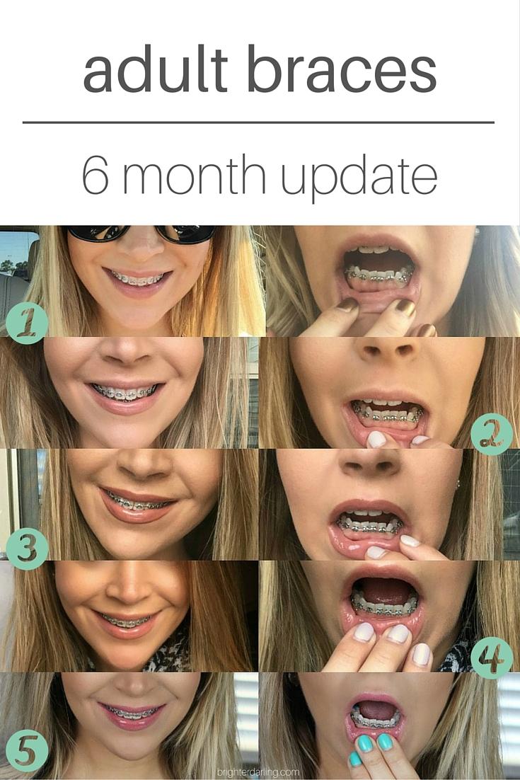 6 month braces update adult braces women with braces pinterest
