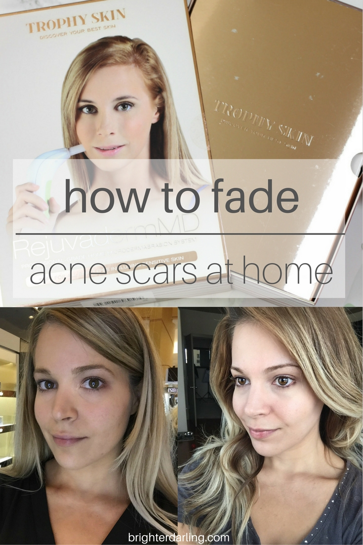 How I Faded My Acne Scars At Home Using Trophy Skin's RejuvadermMD | How To Fade Acne Scars At Home | At Home Microdermabrasion Tool | Diamond Tip Microdermabrasion Tool
