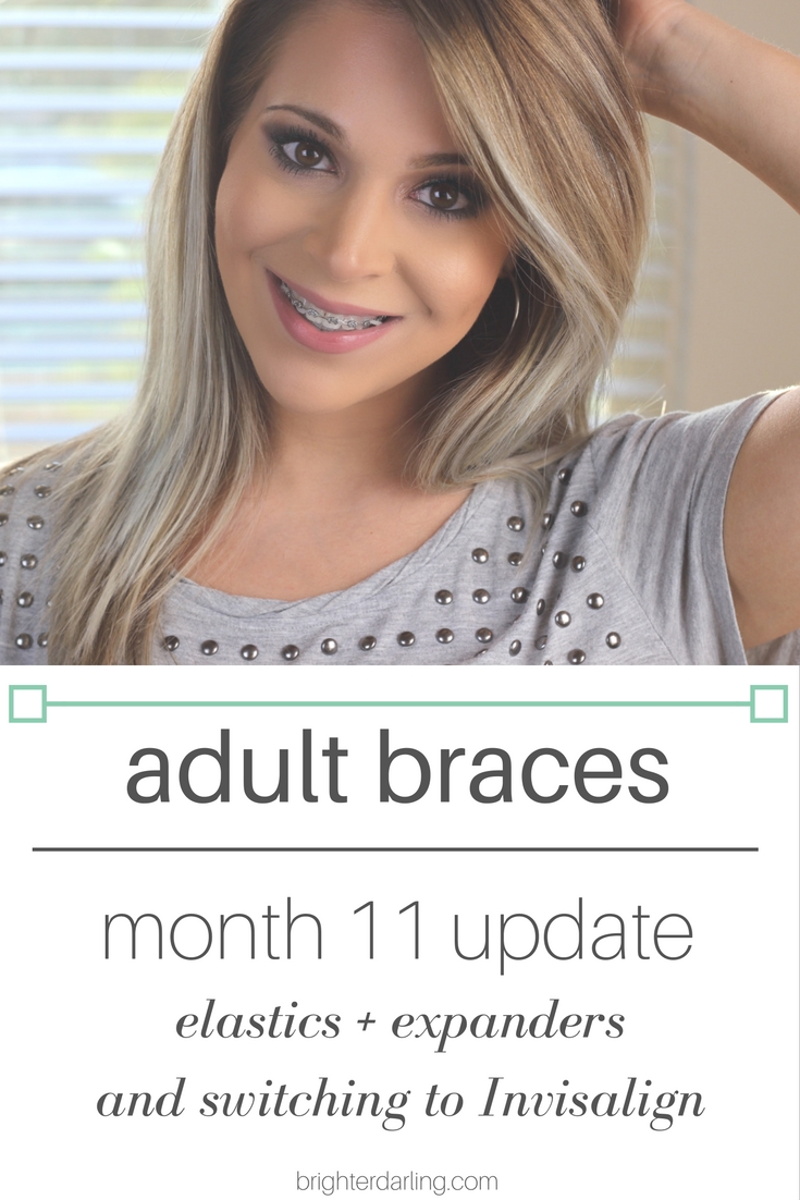 Adult Braces Month 11 Update - Elastics Expanders and Switching To Invisalign