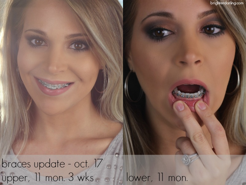 Adult Braces Month 11 Update Upper and Lower Teeth Close Up