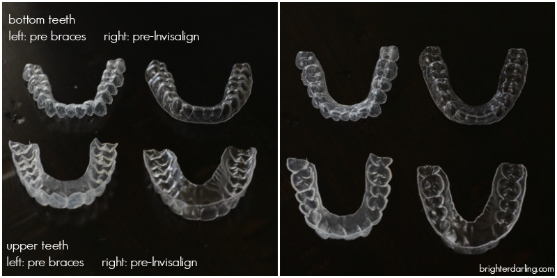before braces bleach trays vs pre invisalign