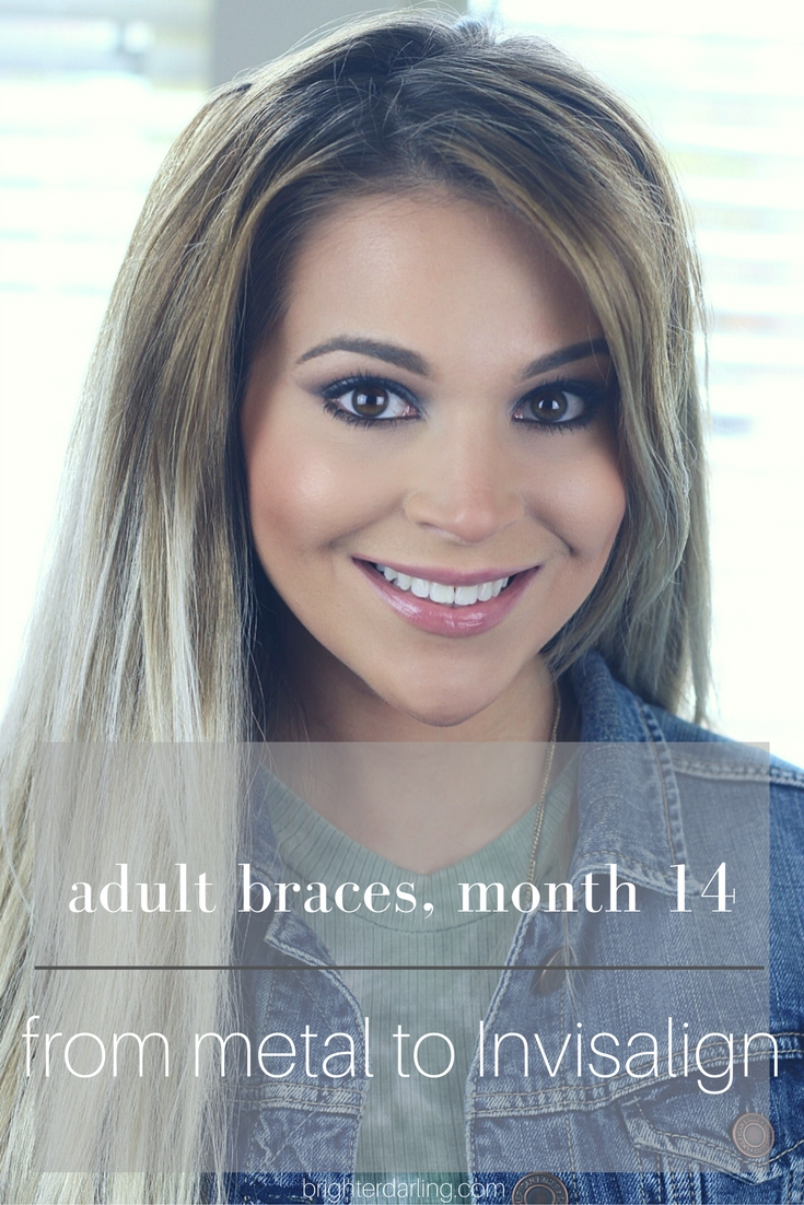 Month 14 Adult Braces | Switching from Metal Braces to Invisalign | Women with Braces