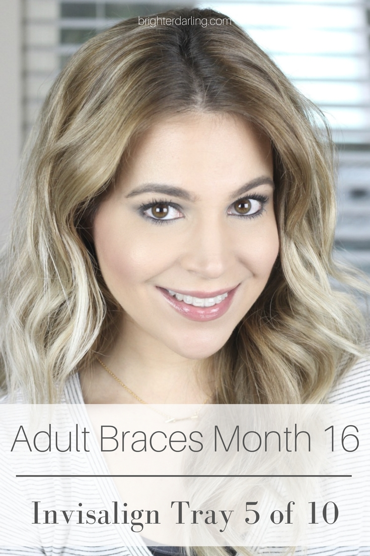 Adult Braces Month 16 Update | Women with Invisalign | Women with Braces