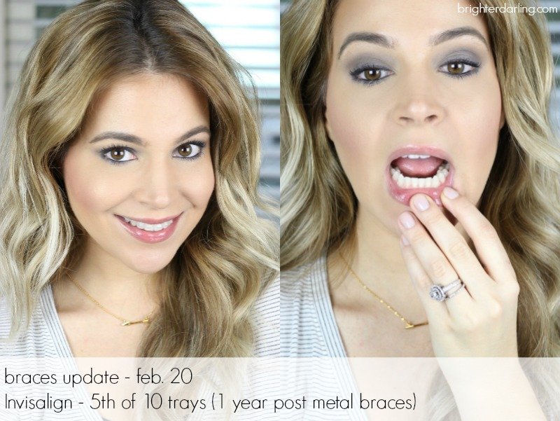 Adult Braces Month 16 | Adults with Invisalign | Month 16 Adult Braces Update
