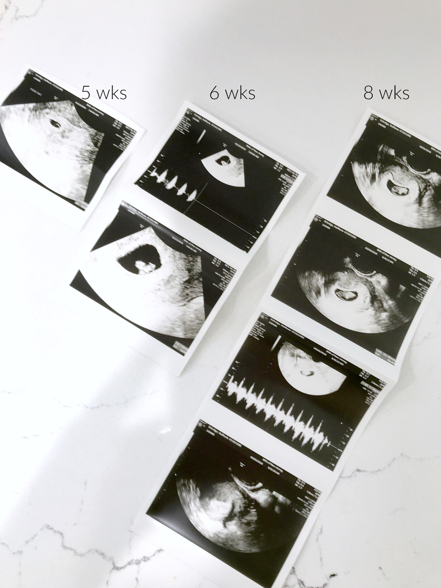 Our IVF Pregnancy Story | Ultrasounds Week 5 Week 6 Week 8