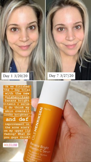 Ole Henriksen Banana Bright Vitamin C Serum | Shopping the April 2020 Sephora Sale Brighter Darling